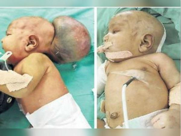 16 day old girl had a tumor of 4 kg in her head
