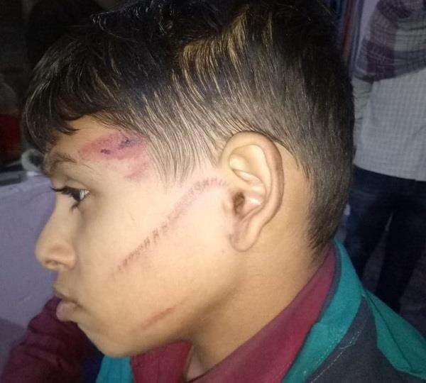 boy beaten case