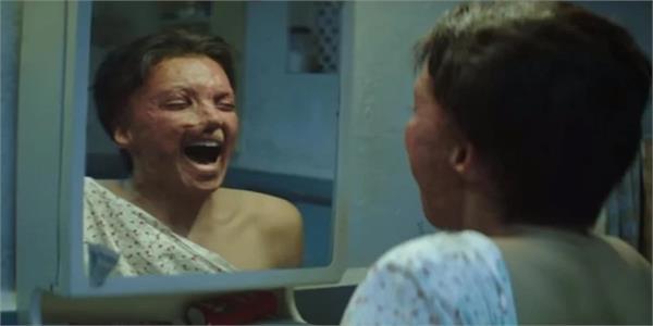Chhapaak Trailer:ਦਿਲ ਦਹਿਲਾ ਦੇਵੇਗੀ ਐਸਿਡ ਅਟੈਕ ਨਾਲ ਜੂਝਦੀ ਦੀਪਿਕਾ ਪਾਦੂਕੋਣ ਦੀ ਕਹਾਣੀ