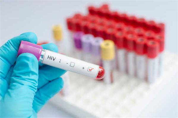 in pakistan  out of 2500 people  31 people died hiv test