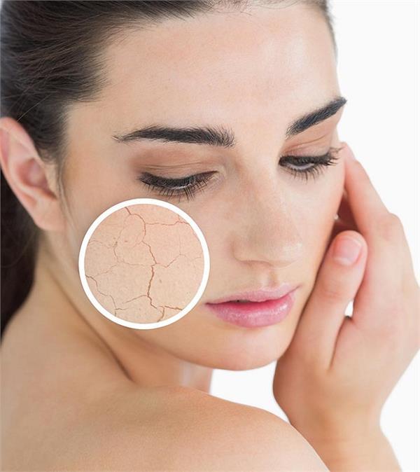 beauty tips for dry skin