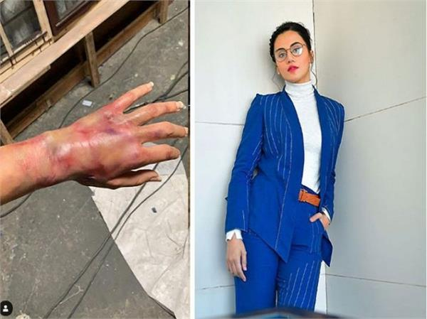taapsee pannu shares pic of her injury