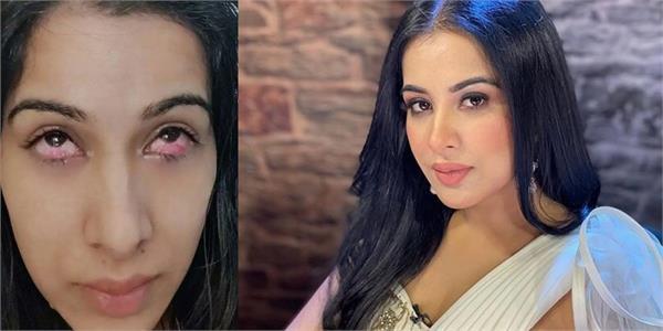 sara gurpal s eye injury pics emerge online