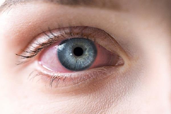 canada  pink eyes