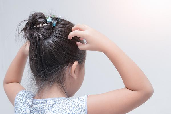 head lice will not fall in rainy season follow these remedies
