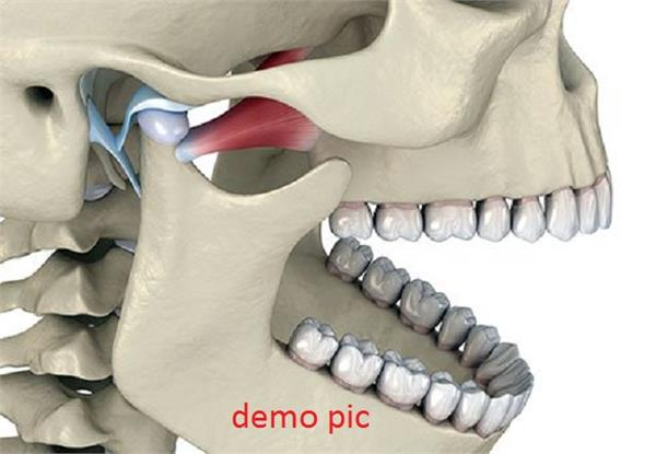 new jaw made from foot bone