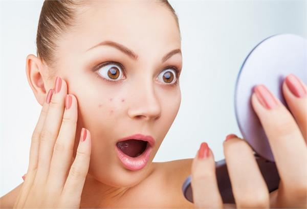 beauty tips  mix these things in yogurt to get rid of dark spots