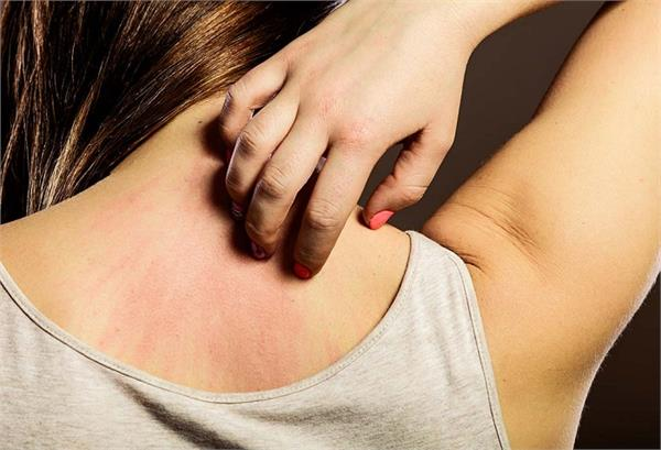 health tips itching problems remedies methods uses