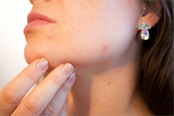 find out why there are pimples on the face follow these tips