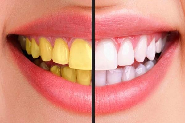 be sure to follow these home remedies to get rid of yellow teeth