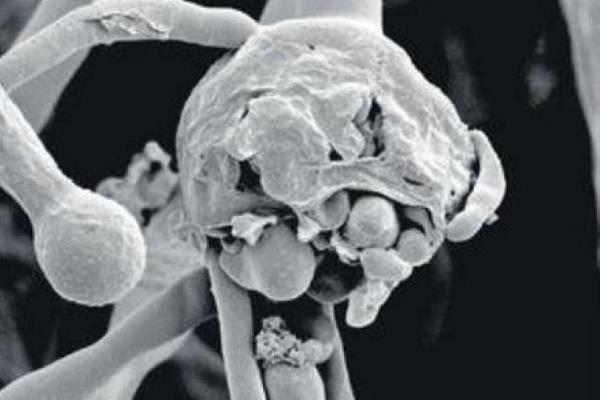 black fungus haryana notified diseases anil vij