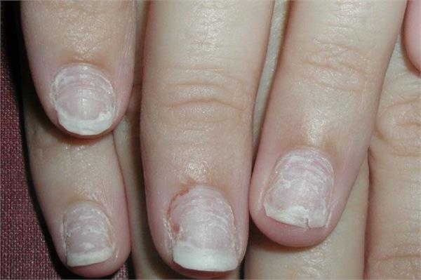 beauty tips hands feet nails infections home remedies
