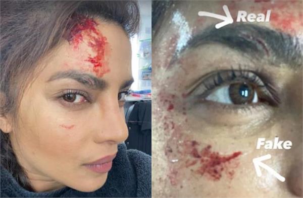 priyanka chopra injured on set of   citadel    fans worried